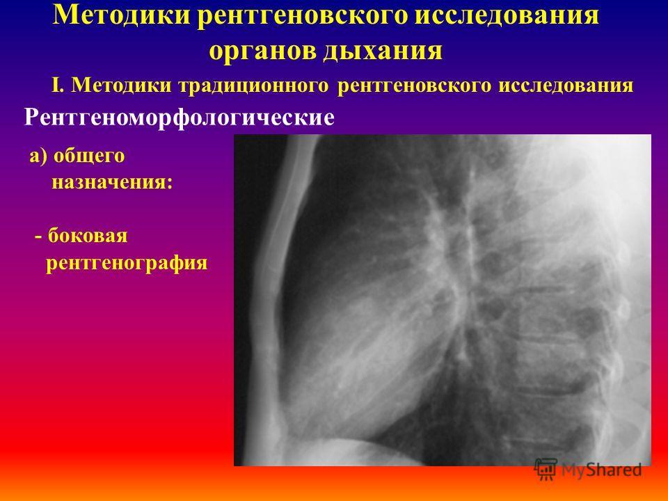 Методики рентгеновского исследования органов дыхания І. Методики традиционного рентгеновского исследования Рентгеноморфологические а) общего назначения: обзорная рентгенография