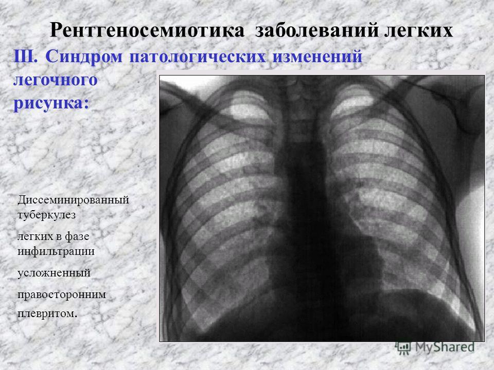 Рентгеносемиотика заболеваний легких ІІІ. Синдром патологических изменений легочного рисунка: 1. Усиленный 2. Обогащенный 3. Ослабленный 4. Обедневший 5. Деформированный