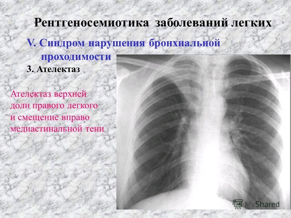 Рентгеносемиотика заболеваний легких V. Синдром нарушения бронхиальной проходимости 1. Гиповентиляция 2. Вентильная эмфизема 3. Ателектаз