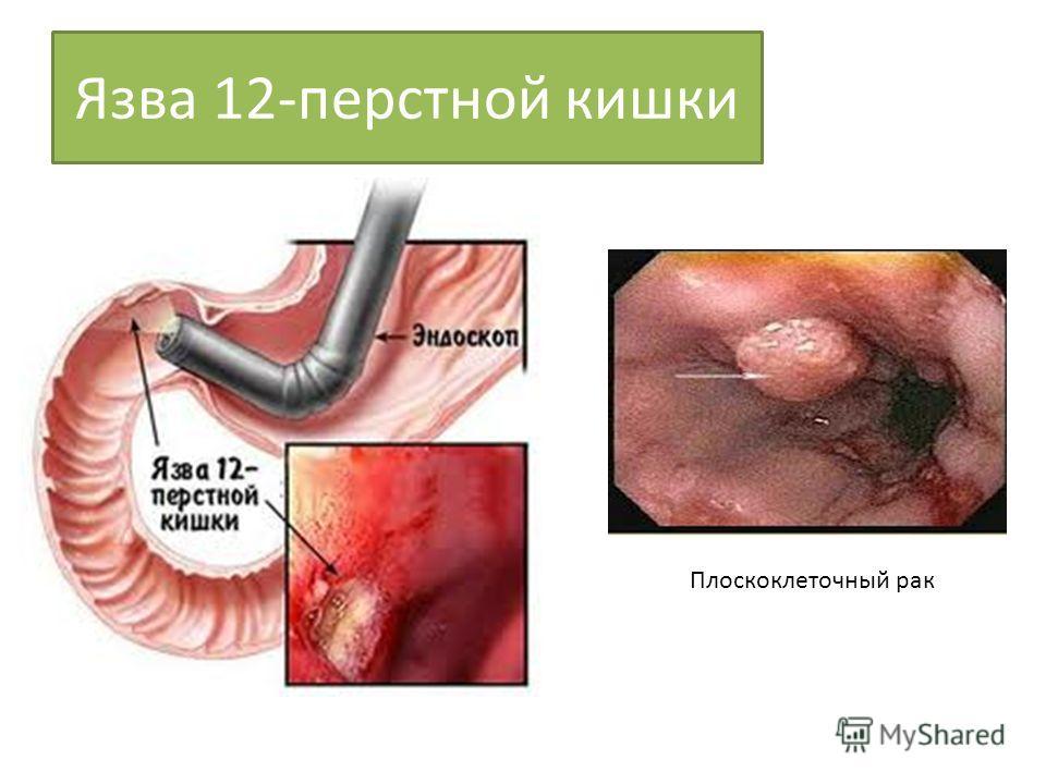 Как лечить 12 перстную кишку и язву желудка