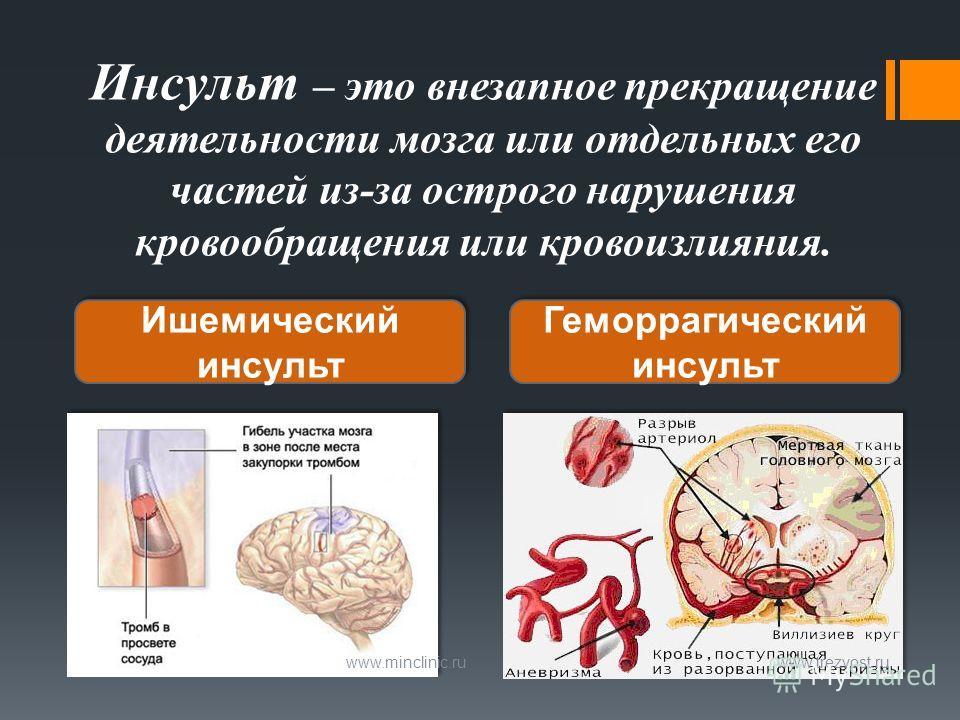 Инсульт – это внезапное прекращение деятельности мозга или отдельных его частей из-за острого нарушения кровообращения или кровоизлияния. www.minclinic.ru www.trezvost.ru Ишемический инсульт Геморрагический инсульт
