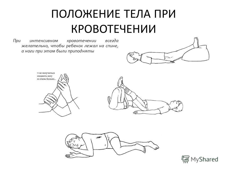 ПОЛОЖЕНИЕ ТЕЛА ПРИ КРОВОТЕЧЕНИИ При интенсивном кровотечении всегда желательно, чтобы ребенок лежал на спине, а ноги при этом были приподняты