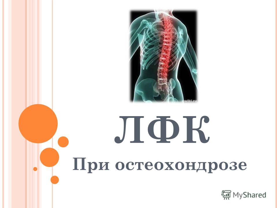 ЛФК При остеохондрозе