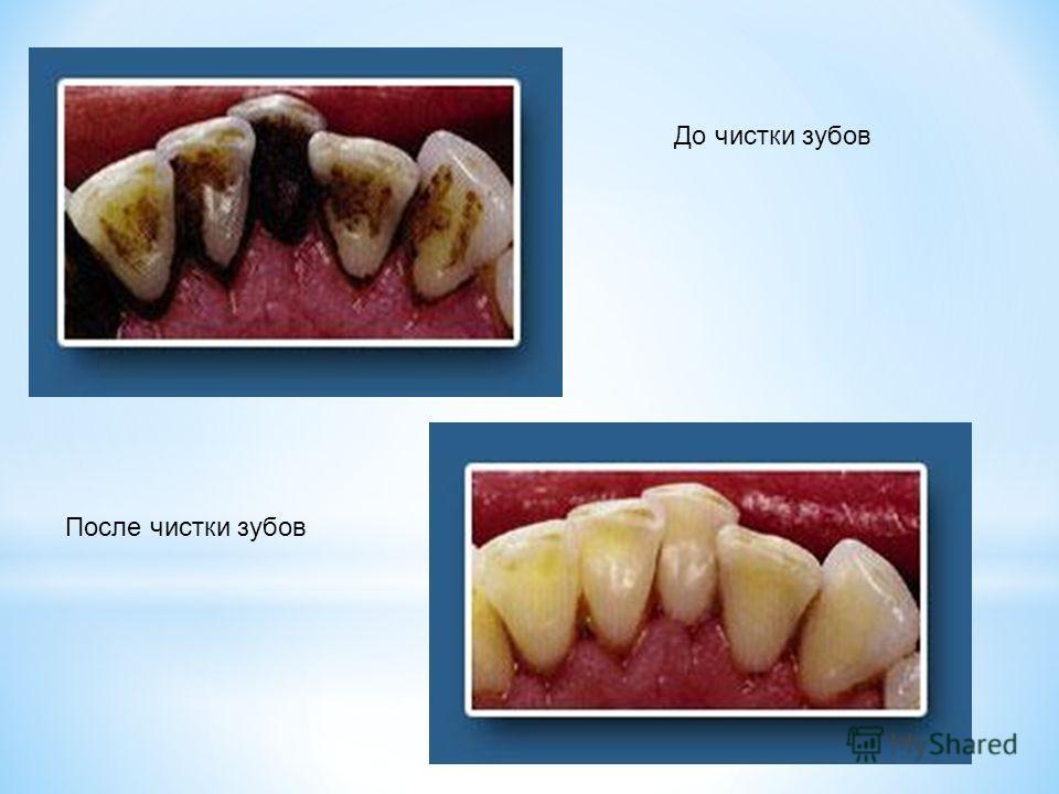 До чистки зубов После чистки зубов