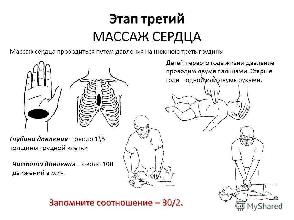 Детей первого года жизни давление проводим двумя пальцами. Старше года – одной или двумя руками. Этап третий МАССАЖ СЕРДЦА Массаж сердца проводиться путем давления на нижнюю треть грудины Запомните соотношение – 30/2. Глубина давления – около 1\3 тол