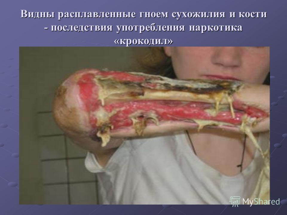 Видны расплавленные гноем сухожилия и кости - последствия употребления наркотика «крокодил»