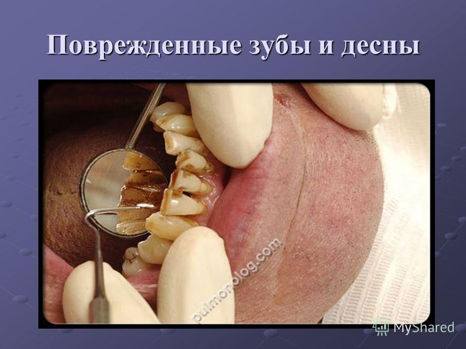 Поврежденные зубы и десны