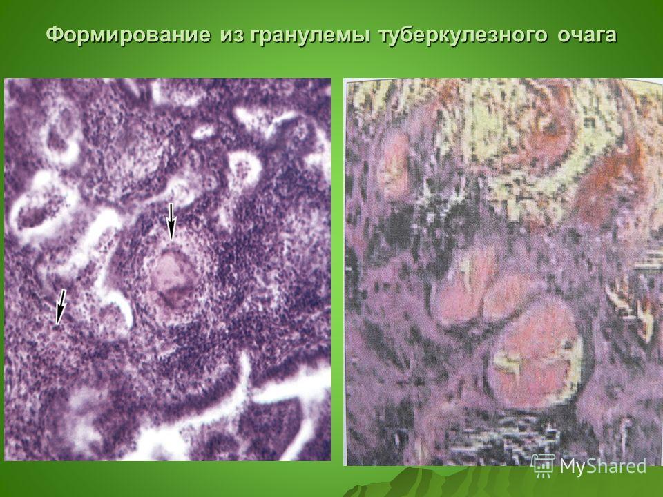 Формирование из гранулемы туберкулезного очага