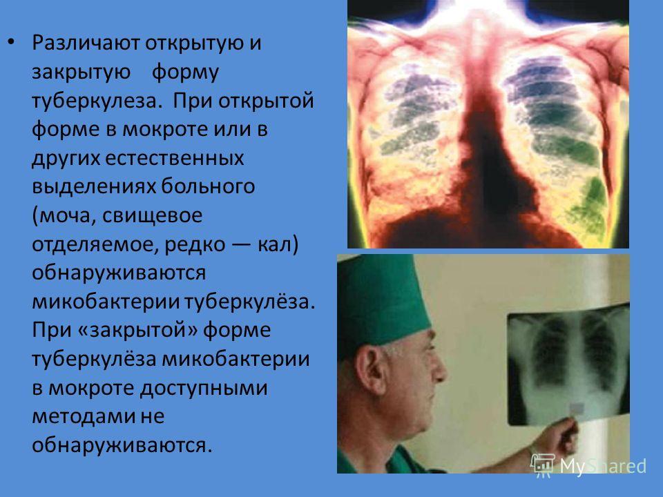 Различают открытую и закрытую форму туберкулеза. При открытой форме в мокроте или в других естественных выделениях больного (моча, свищевое отделяемое, редко кал) обнаруживаются микобактерии туберкулёза. При «закрытой» форме туберкулёза микобактерии
