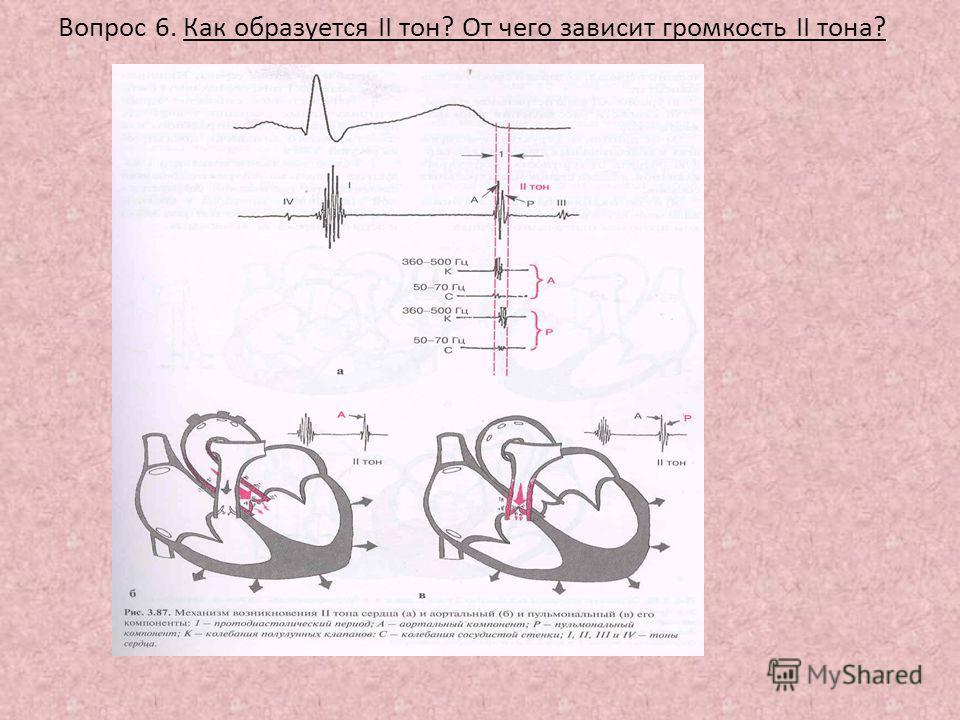 Вопрос 6. Как образуется II тон? От чего зависит громкость II тона?