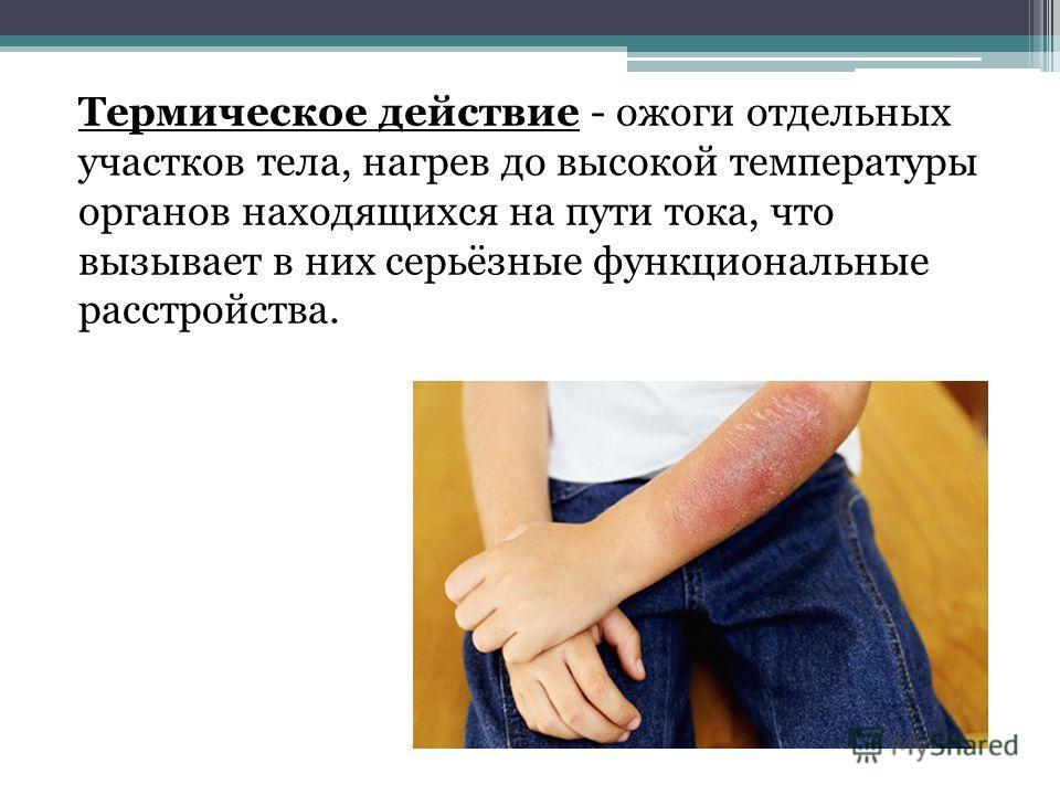 Термическое действие - ожоги отдельных участков тела, нагрев до высокой температуры органов находящихся на пути тока, что вызывает в них серьёзные функциональные расстройства.
