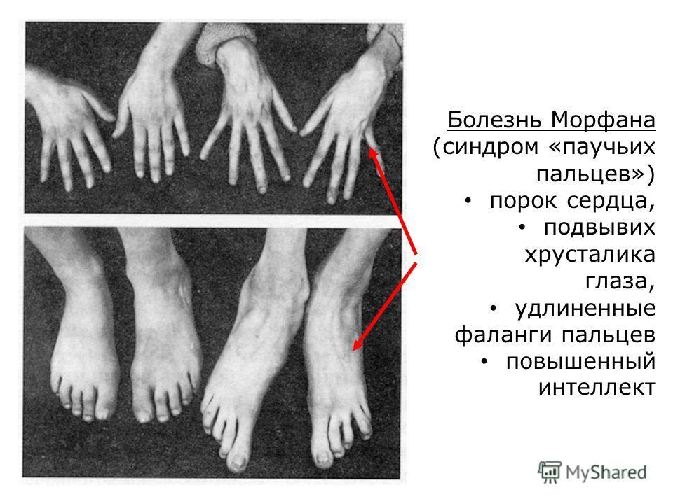 Болезнь Морфана (синдром «паучьих пальцев») порок сердца, подвывих хрусталика глаза, удлиненные фаланги пальцев повышенный интеллект