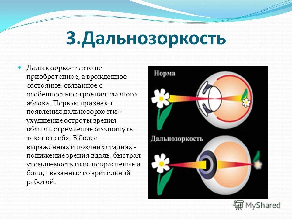 3.Дальнозоркость Дальнозоркость это не приобретенное, а врожденное состояние, связанное с особенностью строения глазного яблока. Первые признаки появления дальнозоркости - ухудшение остроты зрения вблизи, стремление отодвинуть текст от себя. В более