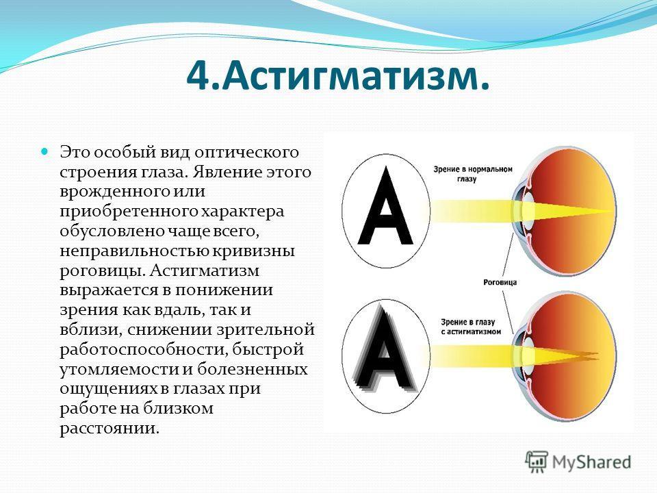 4.Астигматизм. Это особый вид оптического строения глаза. Явление этого врожденного или приобретенного характера обусловлено чаще всего, неправильностью кривизны роговицы. Астигматизм выражается в понижении зрения как вдаль, так и вблизи, снижении зр