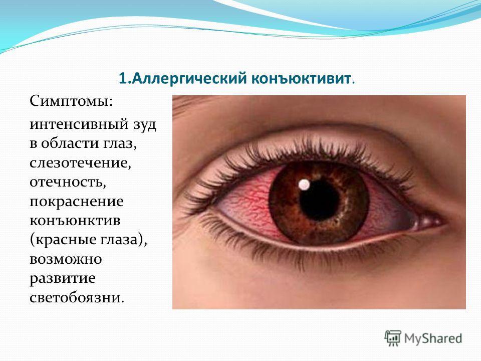 1.Аллергический конъюктивит. Симптомы: интенсивный зуд в области глаз, слезотечение, отечность, покраснение конъюнктив (красные глаза), возможно развитие светобоязни.