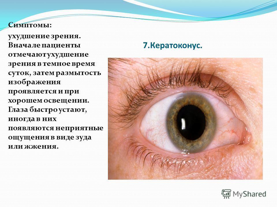 7.Кератоконус. Симптомы: ухудшение зрения. Вначале пациенты отмечают ухудшение зрения в темное время суток, затем размытость изображения проявляется и при хорошем освещении. Глаза быстро устают, иногда в них появляются неприятные ощущения в виде зуда