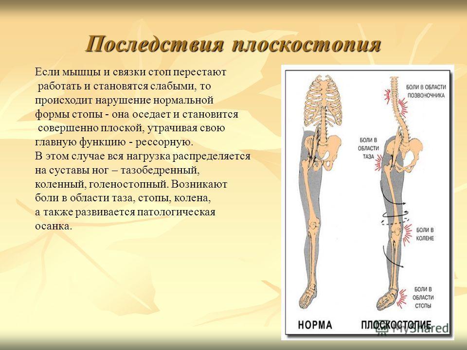 Последствия плоскостопия Если мышцы и связки стоп перестают работать и становятся слабыми, то происходит нарушение нормальной формы стопы - она оседает и становится совершенно плоской, утрачивая свою главную функцию - рессорную. В этом случае вся наг