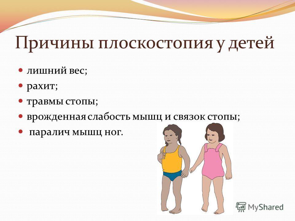 Причины плоскостопия у детей лишний вес; рахит; травмы стопы; врожденная слабость мышц и связок стопы; паралич мышц ног.