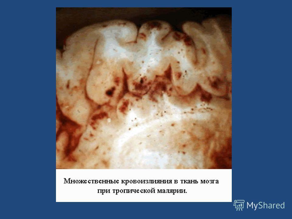 Экзоэритроцитарный фото