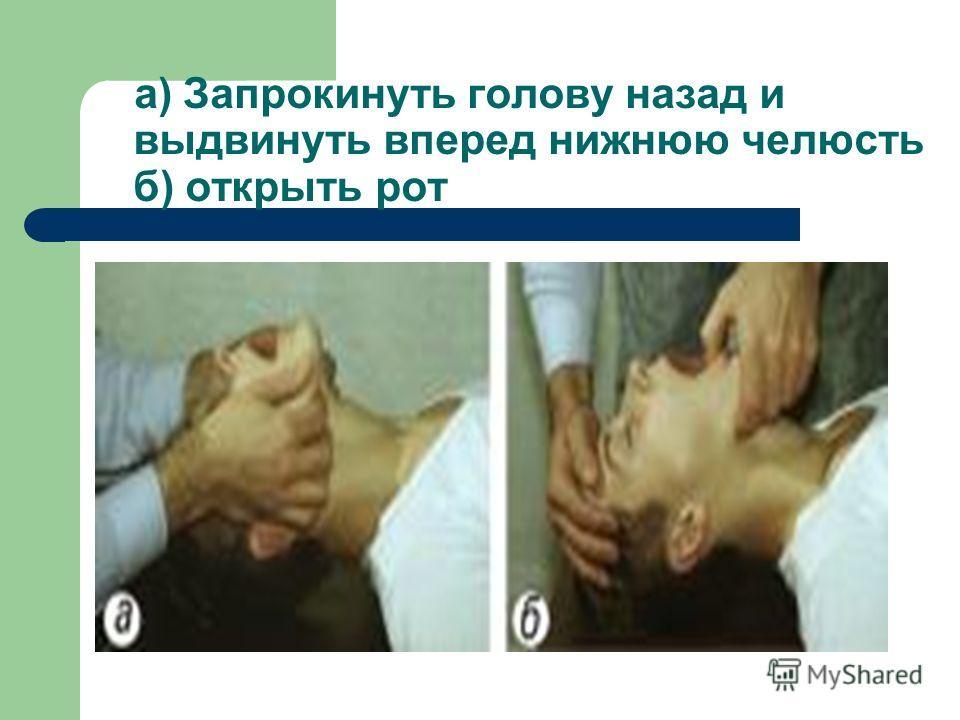 а) Запрокинуть голову назад и выдвинуть вперед нижнюю челюсть б) открыть рот
