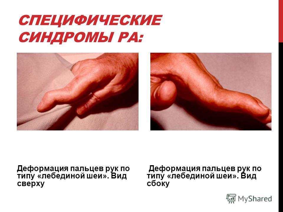 СПЕЦИФИЧЕСКИЕ СИНДРОМЫ РА: Деформация пальцев рук по типу «лебединой шеи». Вид сверху Деформация пальцев рук по типу «лебединой шеи». Вид сбоку