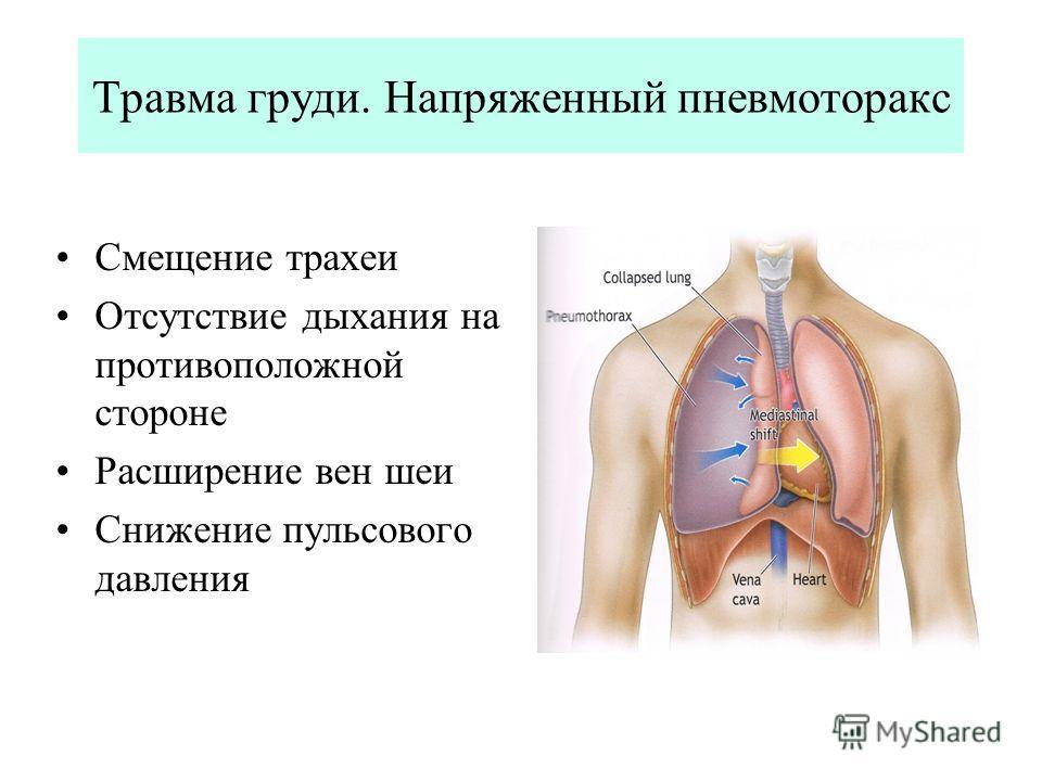 Травма груди. Напряженный пневмоторакс Смещение трахеи Отсутствие дыхания на противоположной стороне Расширение вен шеи Снижение пульсового давления