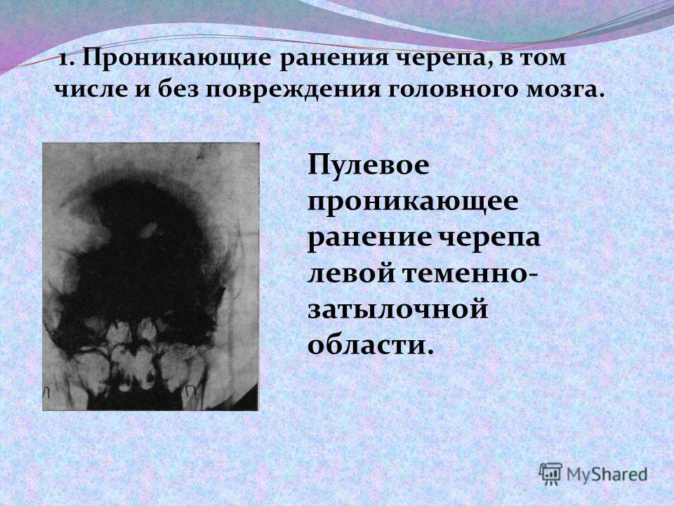 1. Проникающие ранения черепа, в том числе и без повреждения головного мозга. Пулевое проникающее ранение черепа левой теменно- затылочной области.