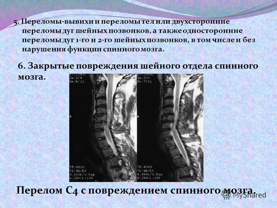5. Переломы-вывихи и переломы тел или двухсторонние переломы дуг шейных позвонков, а также односторонние переломы дуг 1-го и 2-го шейных позвонков, в том числе и без нарушения функции спинного мозга. Перелом С4 с повреждением спинного мозга. 6. Закры