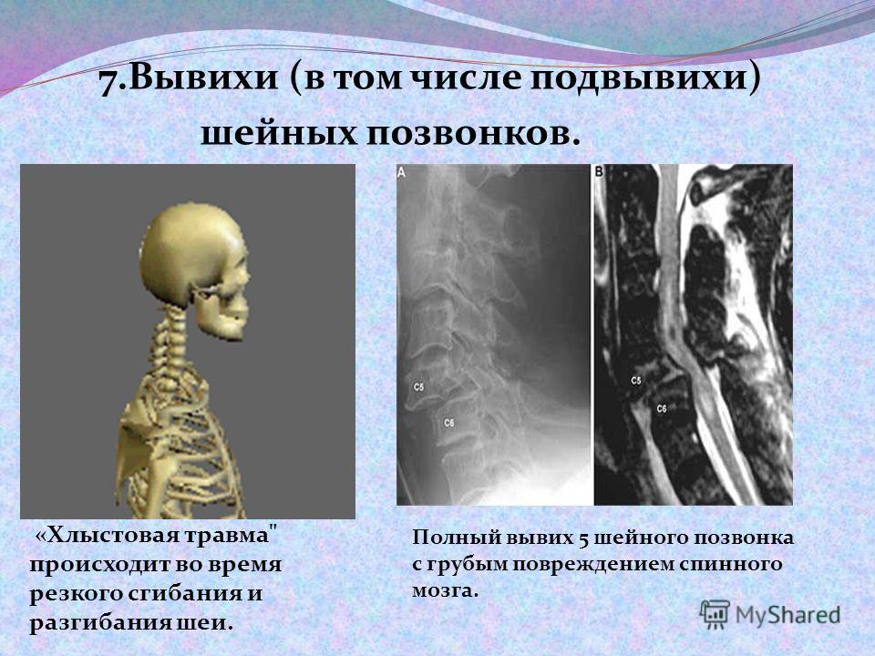 7.Вывихи (в том числе подвывихи) шейных позвонков. «Хлыстовая травма происходит во время резкого сгибания и разгибания шеи. Полный вывих 5 шейного позвонка с грубым повреждением спинного мозга.