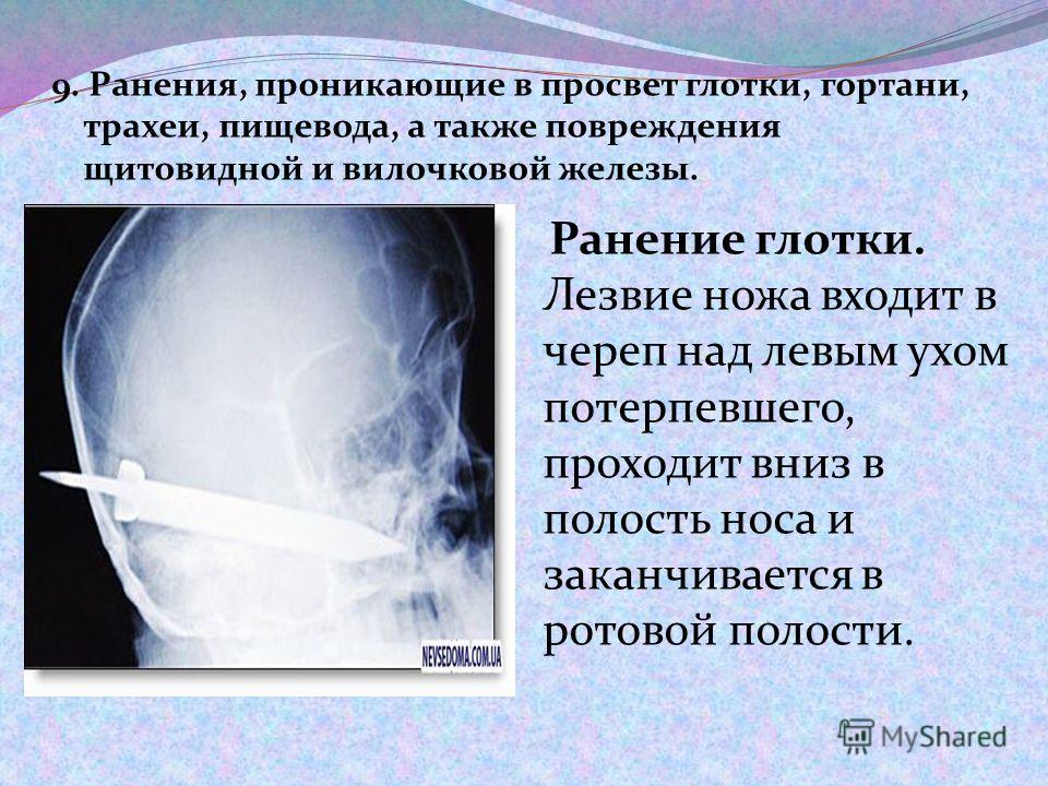 9. Ранения, проникающие в просвет глотки, гортани, трахеи, пищевода, а также повреждения щитовидной и вилочковой железы. Ранение глотки. Лезвие ножа входит в череп над левым ухом потерпевшего, проходит вниз в полость носа и заканчивается в ротовой по