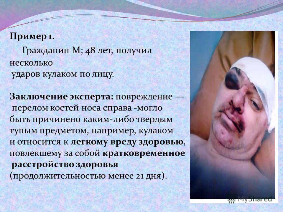Пример 1. Гражданин М; 48 лет, получил несколько ударов кулаком по лицу. Заключение эксперта: повреждение перелом костей носа справа -могло быть причинено каким-либо твердым тупым предметом, например, кулаком и относится к легкому вреду здоровью, пов