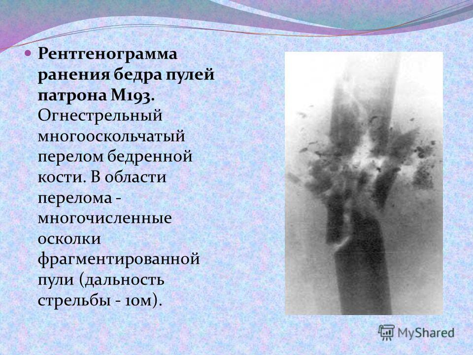 Рентгенограмма ранения бедра пулей патрона М193. Огнестрельный многооскольчатый перелом бедренной кости. В области перелома - многочисленные осколки фрагментированной пули (дальность стрельбы - 10м).