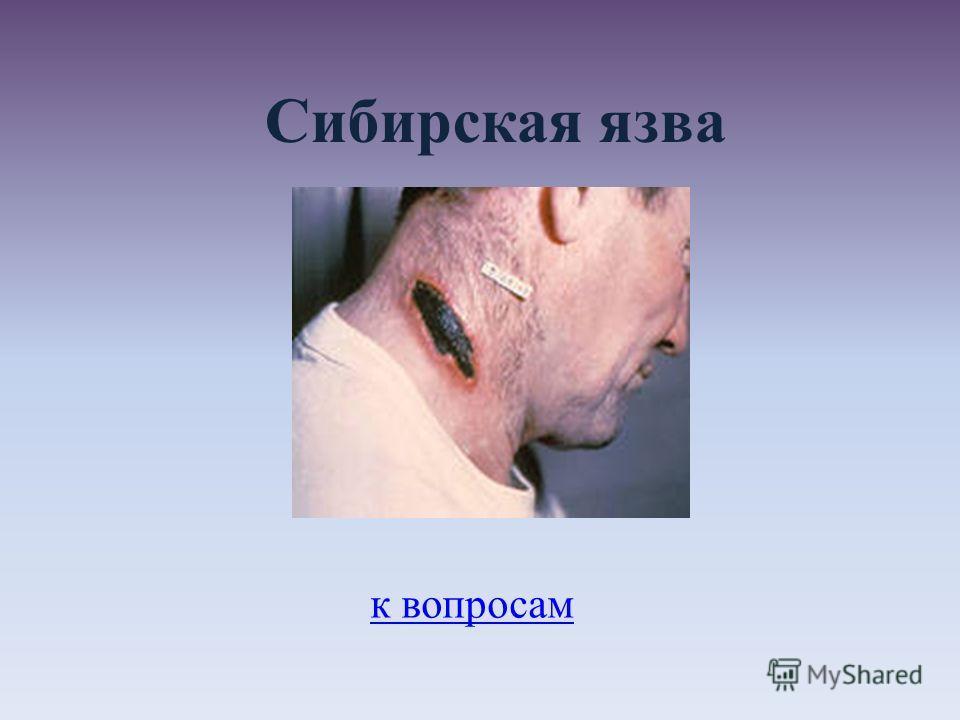 Сибирская язва к вопросам