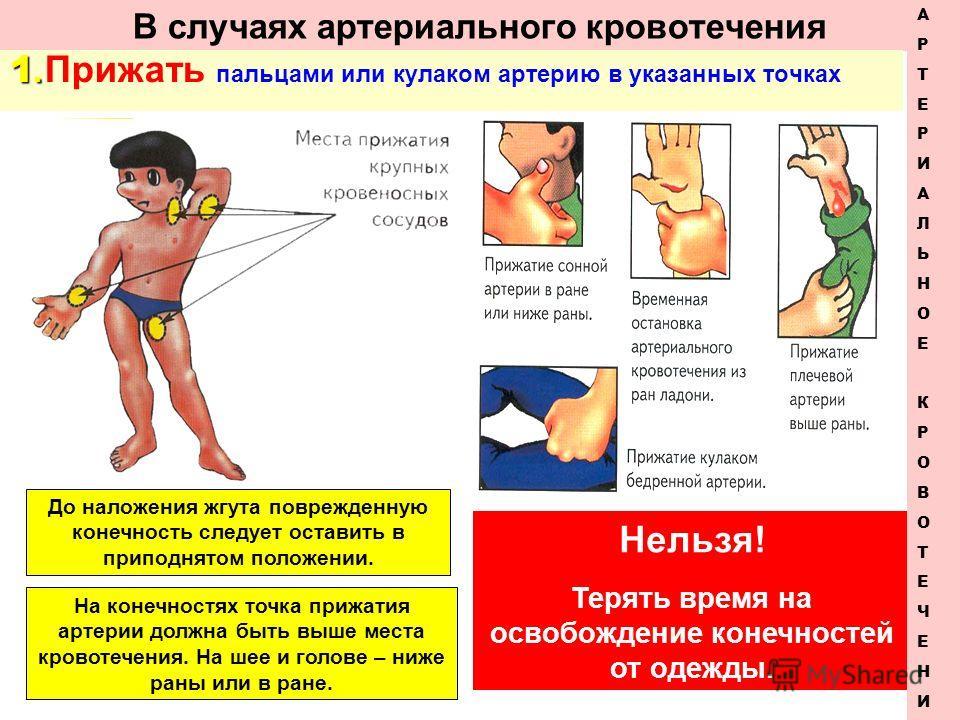 В случаях артериального кровотечения 1. 1. Прижать пальцами или кулаком артерию в указанных точках Нельзя! Терять время на освобождение конечностей от одежды. АРТЕРИАЛЬНОЕКРОВОТЕЧЕНИЕАРТЕРИАЛЬНОЕКРОВОТЕЧЕНИЕ До наложения жгута поврежденную конечность