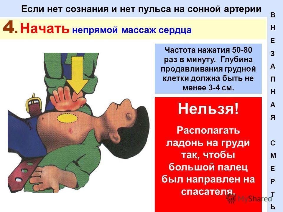 Если нет сознания и нет пульса на сонной артерии 4. Начать непрямой массаж сердца Нельзя! Располагать ладонь на груди так, чтобы большой палец был направлен на спасателя. ВНЕЗАПНАЯСМЕРТЬВНЕЗАПНАЯСМЕРТЬ Частота нажатия 50-80 раз в минуту. Глубина прод