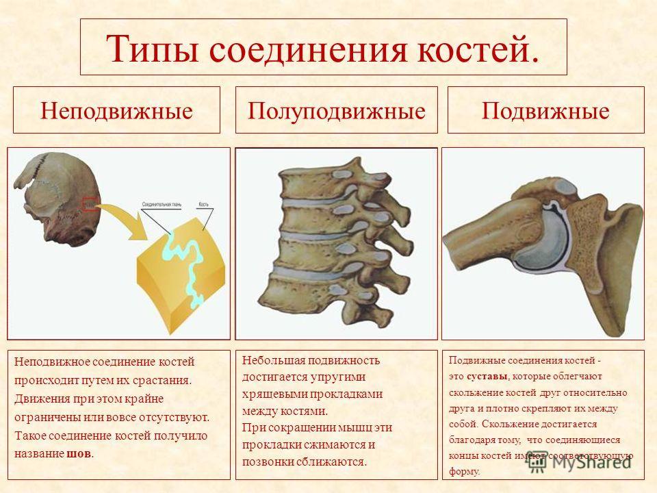 Типы соединения костей. НеподвижныеПолуподвижныеПодвижные Неподвижное соединение костей происходит путем их срастания. Движения при этом крайне ограничены или вовсе отсутствуют. Такое соединение костей получило название шов. Небольшая подвижность дос