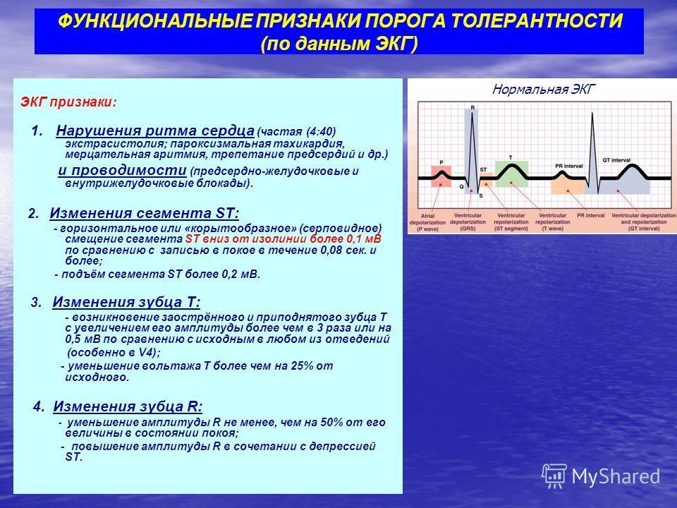 ЭКГ признаки: 1. Нарушения ритма сердца (частая (4:40) экстрасистолия; пароксизмальная тахикардия, мерцательная аритмия, трепетание предсердий и др.) и проводимости (предсердно-желудочковые и внутрижелудочковые блокады). 2. Изменения сегмента ST: - г
