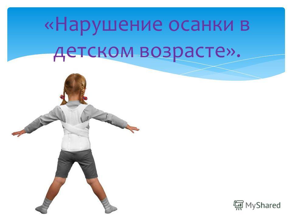 «Нарушение осанки в детском возрасте».