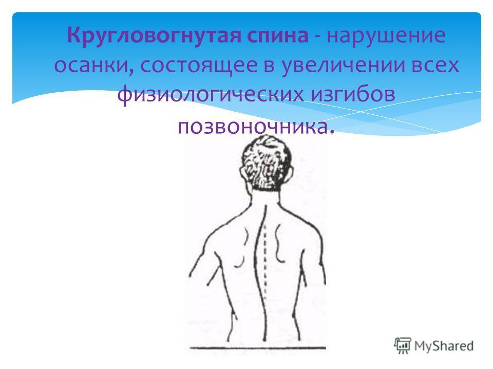 Кругловогнутая спина - нарушение осанки, состоящее в увеличении всех физиологических изгибов позвоночника.