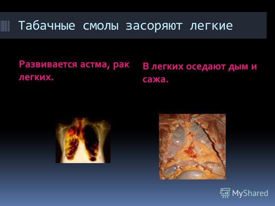 Табачные смолы засоряют легкие Развивается астма, рак легких. В легких оседают дым и сажа.