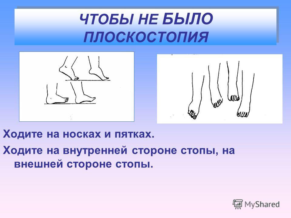 ЧТОБЫ НЕ БЫЛО ПЛОСКОСТОПИЯ Ходите на носках и пятках. Ходите на внутренней стороне стопы, на внешней стороне стопы.