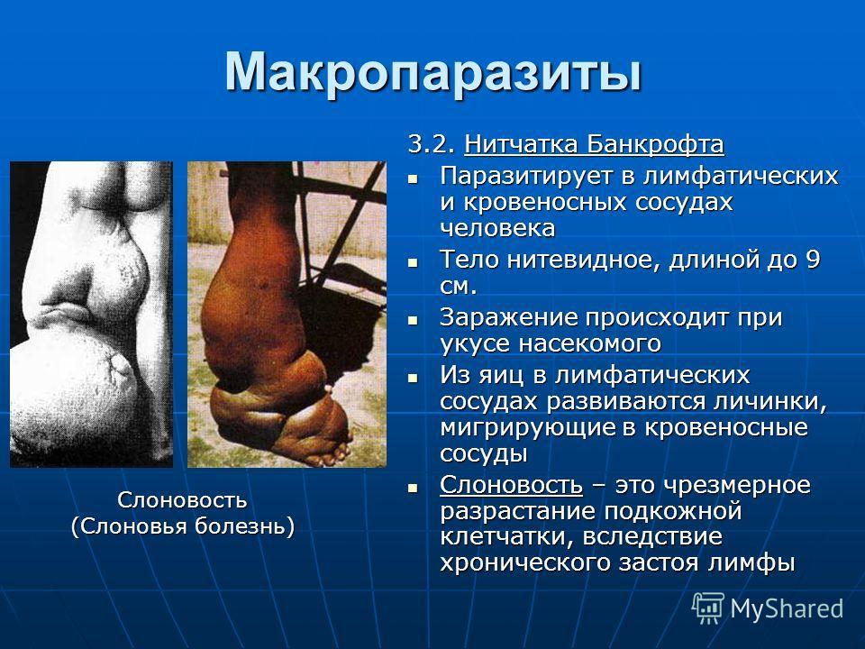 Макропаразиты 3.2. Нитчатка Банкрофта Паразитирует в лимфатических и кровеносных сосудах человека Паразитирует в лимфатических и кровеносных сосудах человека Тело нитевидное, длиной до 9 см. Тело нитевидное, длиной до 9 см. Заражение происходит при у