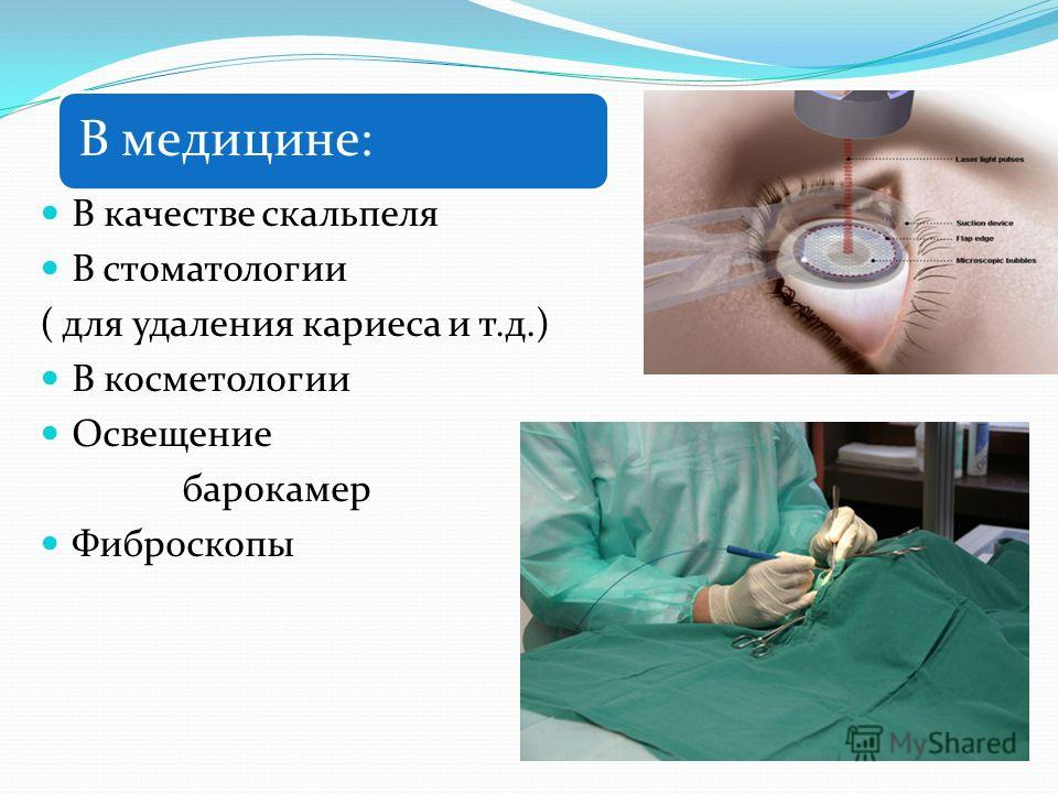 В медицине: В качестве скальпеля В стоматологии ( для удаления кариеса и т.д.) В косметологии Освещение барокамер Фиброскопы