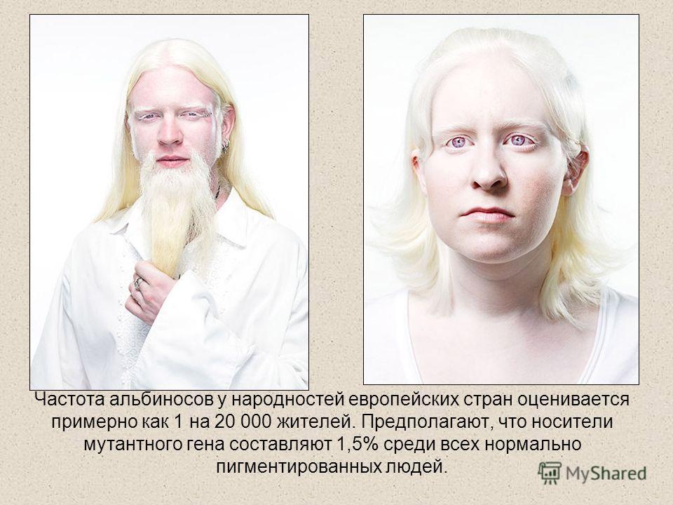 Частота альбиносов у народностей европейских стран оценивается примерно как 1 на 20 000 жителей. Предполагают, что носители мутантного гена составляют 1,5% среди всех нормально пигментированных людей.