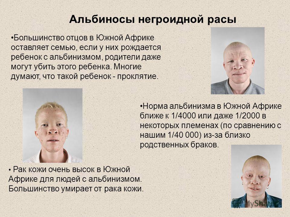 Рак кожи очень высок в Южной Африке для людей с альбинизмом. Большинство умирает от рака кожи. Большинство отцов в Южной Африке оставляет семью, если у них рождается ребенок с альбинизмом, родители даже могут убить этого ребенка. Многие думают, что т
