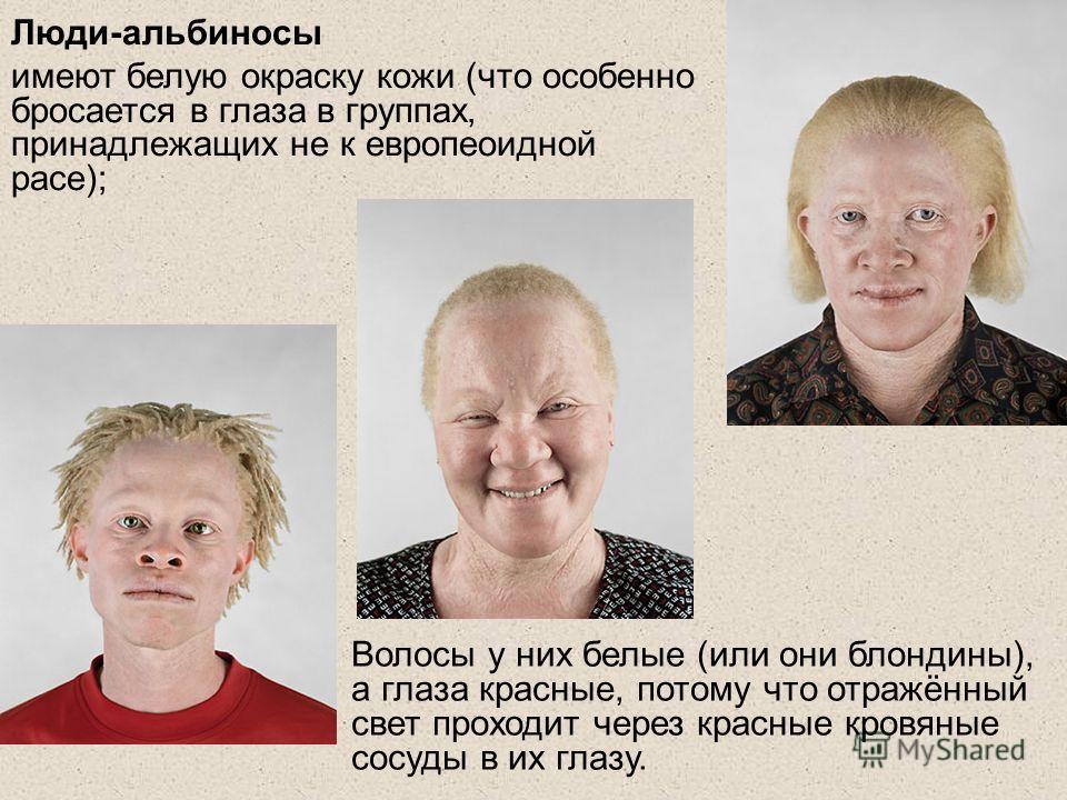 Люди-альбиносы имеют белую окраску кожи (что особенно бросается в глаза в группах, принадлежащих не к европеоидной расе); Волосы у них белые (или они блондины), а глаза красные, потому что отражённый свет проходит через красные кровяные сосуды в их г