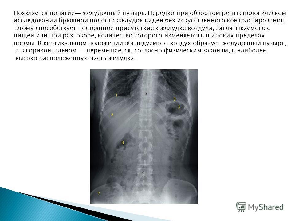 Появляется понятие желудочный пузырь. Нередко при обзорном рентгенологическом исследовании брюшной полости желудок виден без искусственного контрастирования. Этому способствует постоянное присутствие в желудке воздуха, заглатываемого с пищей или при