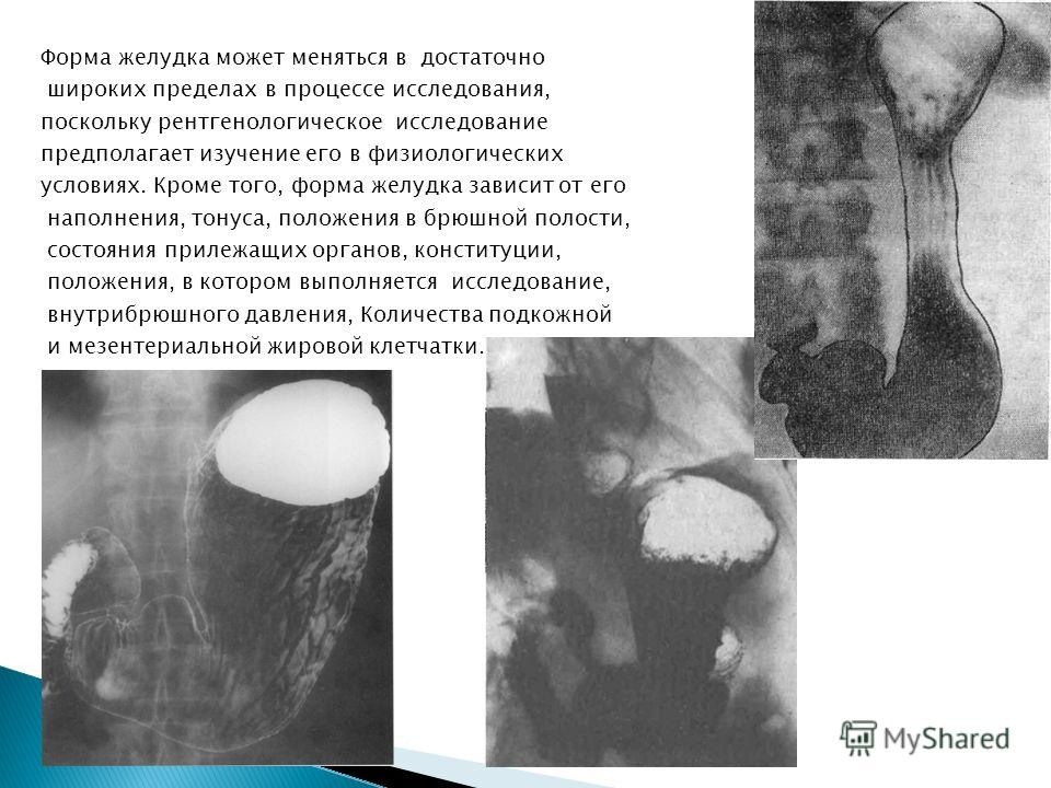 Форма желудка может меняться в достаточно широких пределах в процессе исследования, поскольку рентгенологическое исследование предполагает изучение его в физиологических условиях. Кроме того, форма желудка зависит от его наполнения, тонуса, положения