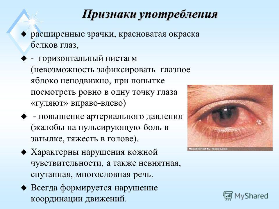 Признаки употребления u расширенные зрачки, красноватая окраска белков глаз, u - горизонтальный нистагм (невозможность зафиксировать глазное яблоко неподвижно, при попытке посмотреть ровно в одну точку глаза «гуляют» вправо-влево) u - повышение артер