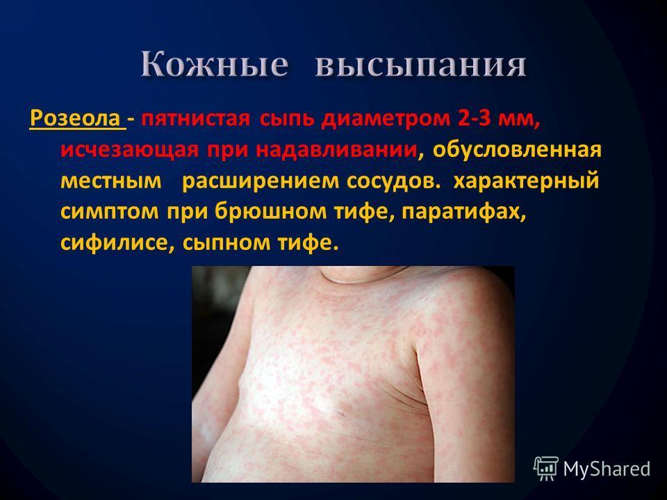 Розеола - пятнистая сыпь диаметром 2-3 мм, исчезающая при надавли  вании, обусловленная местным расширением сосудов. характерный симптом при брюшном тифе, паратифах, сифилисе, сыпном тифе.